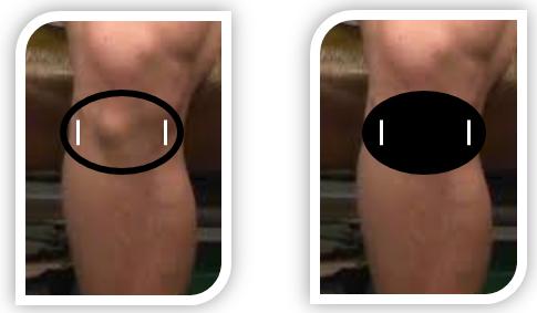 positionnement de l'orthèse end osgood au niveau du genou de l'enfant