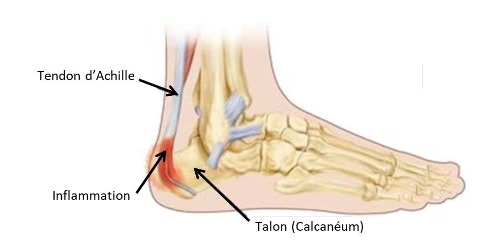maladiesevere talalgie talon du pied