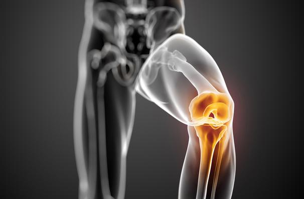 pathologie osgood schlater au niveau du rotule du genou categorie de la boutique