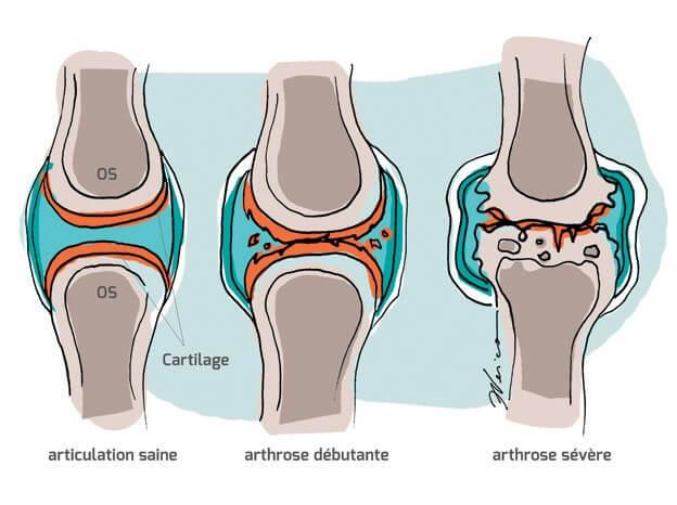 Comparaison de l'articulation normale à l'articulation arthrosique
