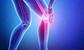 L'arthrose est une maladie qui touche les articulations