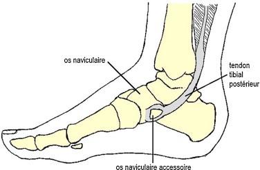 talon du pied atteint par la pathologie de Köhler-Mouchet